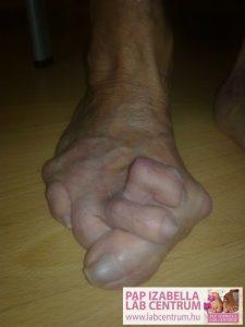 ortopediai elvaltozasok 01