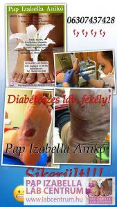 diabeteszes labak 02