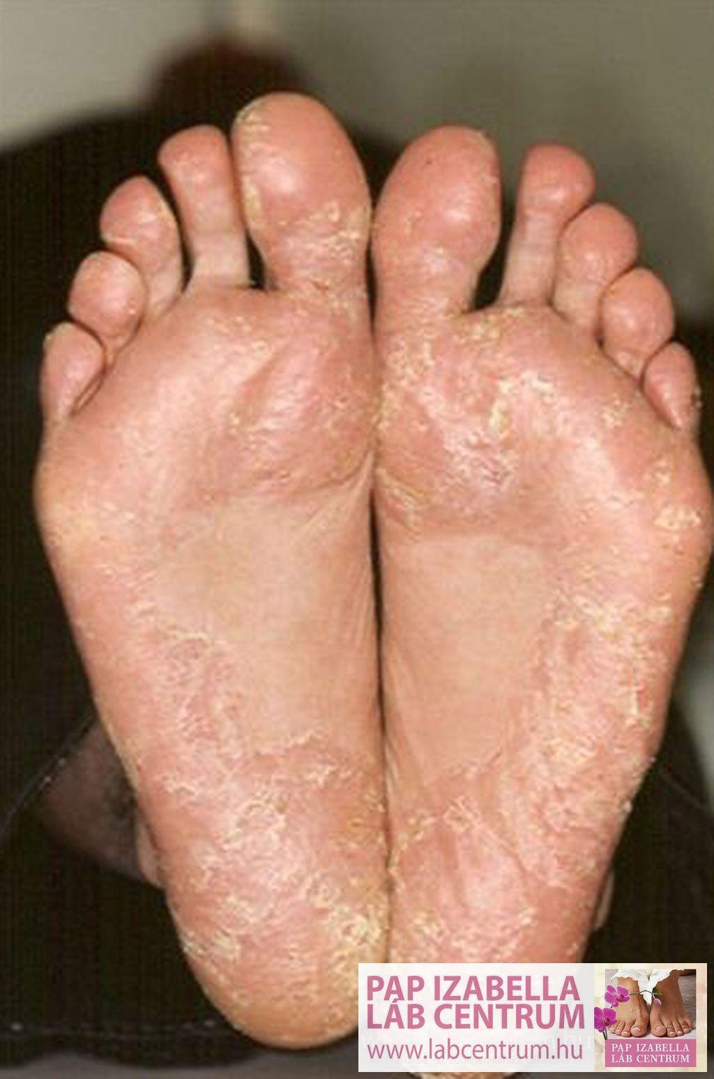 gyógyítani a láb pikkelysömörét)