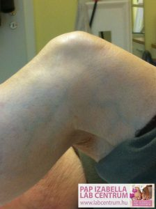 ortopediai elvaltozasok 02