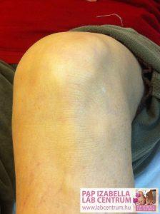 ortopediai elvaltozasok 09