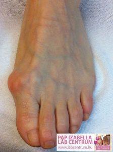 ortopediai elvaltozasok 13