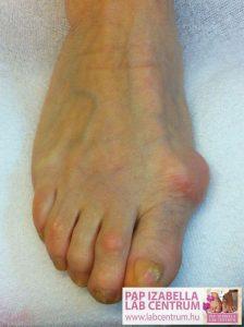 ortopediai elvaltozasok 14
