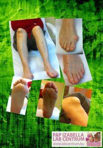 ortopediai elvaltozasok 17