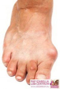 ortopediai elvaltozasok2 01