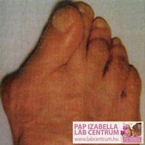 ortopediai elvaltozasok2 02
