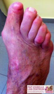 ortopediai elvaltozasok2 06