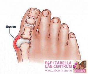ortopediai elvaltozasok2 09